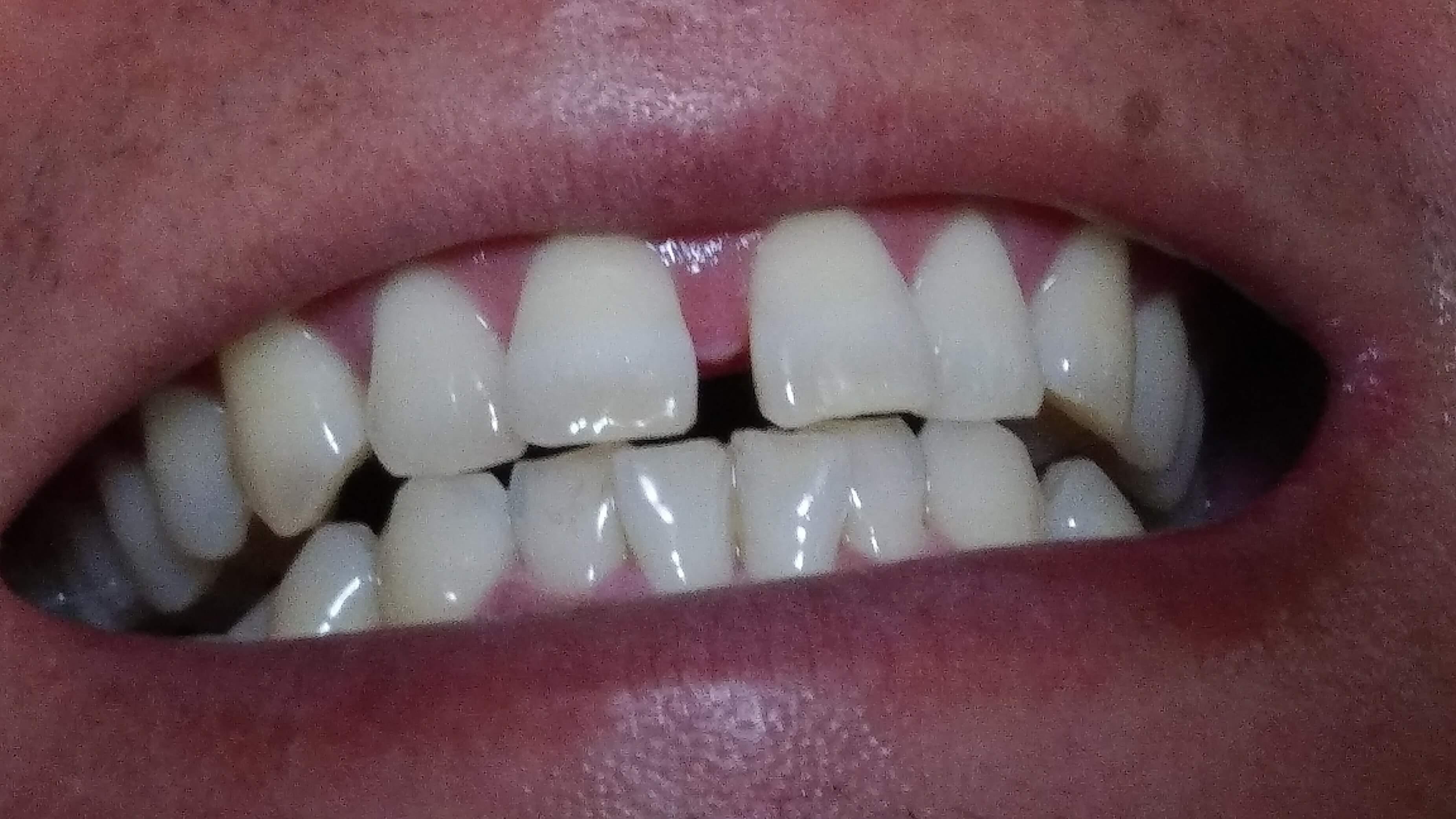 簡単にお金をかけずにキレイな歯にするなら
