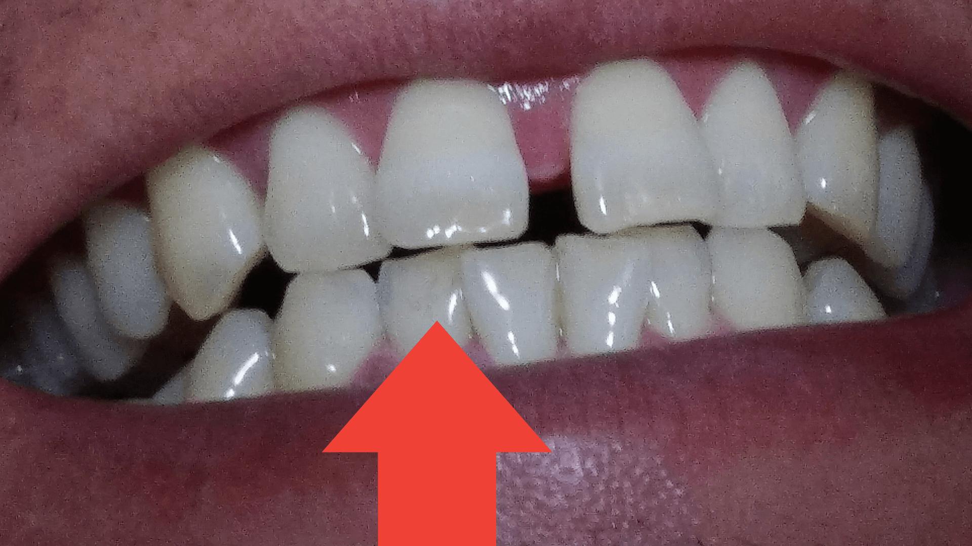 キラルンハミガキでキレイになった白い歯