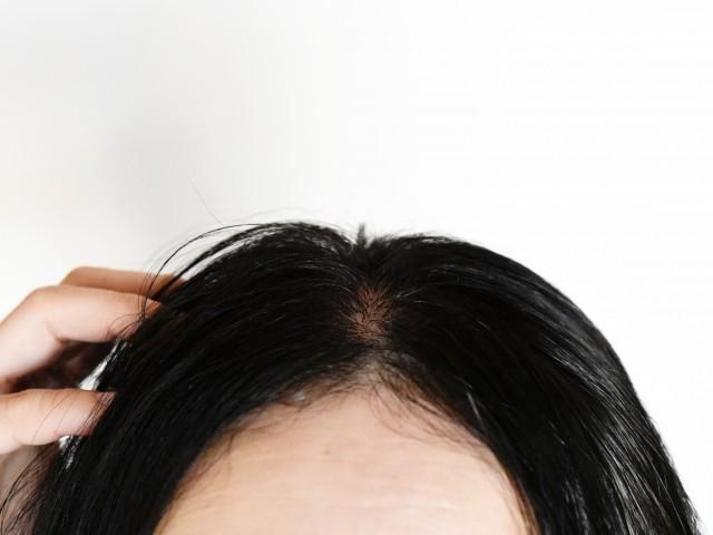 髪の薄さに悩んだら、このグッズを使うと解決